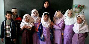 باز هم آتش بیتدبیری بر تن نحیف دانشآموزان +عکس