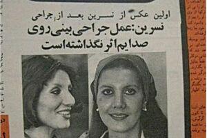 تاریخچه جراحی زیبایی در ایران +عکس