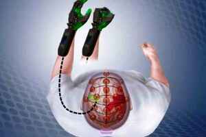 زمان طلایی برای نجات بیمار سکته مغزی