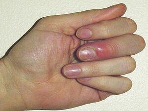 راهکارها برای داشتن ناخنهایی محکم