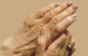 سلامت نمایه پیری پوست