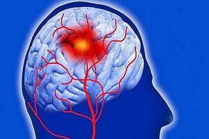 زمان طلایی برای درمان سکته مغزی