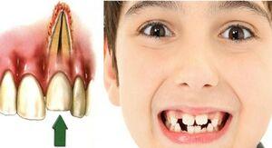 وقتی دندان میمیرد!