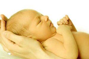 بیماری نمایه  زردی نوزاد