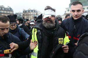 عکس/ پلیس فرانسه معترض جلیقهزرد را نابینا کرد