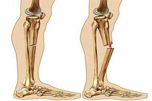 شکستگی استخوان ساق پا