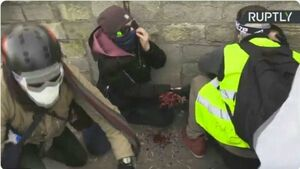 قطع شدن دست یک معترض فرانسوی در پاریس