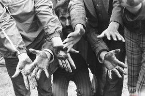 عکس/ دستان آغشته به خون تظاهرکنندگان