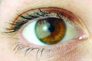 دلایل ایجاد خشکی چشم را بشناسید