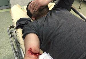 مجروحیت دو تن از بسیجیان تهران در درگیری با سارقین + عکس