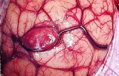 بیماری خطرناکی که جمجمههایتان را به مرور پودر میکند/علائم هشدار دهندهای که نشان میدهد تومور مغزی دارید