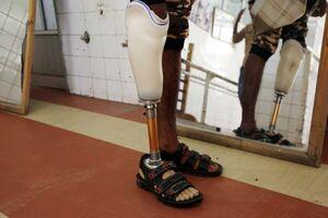 عکس/ ساخت پای مصنوعی در یمن