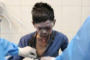 مرگ جوان زنجانی بر اثر انفجار نارنجک دستی