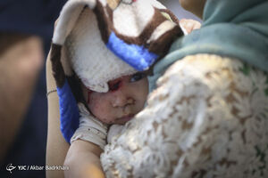 عکس/ مصدومان کوچک چهارشنبه سوری