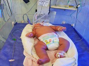 فیلم/ سنگینترین جراحی قلب روی نوزاد ایرانی