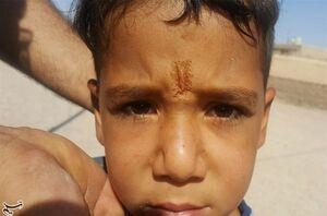 """خطر گسترش """"بیماری سالک"""" در مناطق سیلزده"""