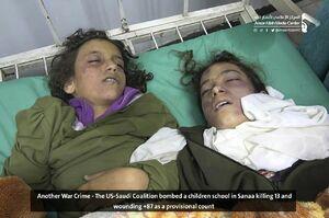 عکس/ جنایت جدید سعودیها در صنعا