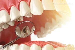 چرا دندان هایمان پوسیده می شوند؟