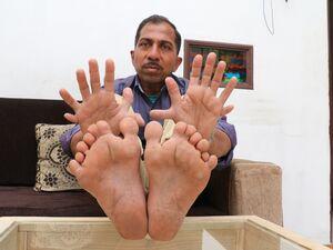 عکس/ مرد ۲۸انگشتی