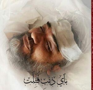 عکس/ خواب آرام امام جمعه شهید شیخ محمد خُرسند