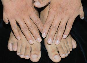 اختلالی کمیاب اما شگفت انگیز در تعداد انگشتان دست