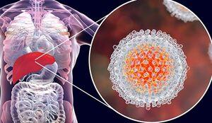 بیماران هپاتیت C در معرض خطر ابتلا به پارکینسون