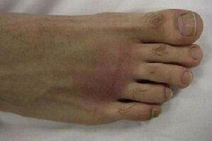 دلایل انحراف انگشت شصت پا/۱۵۰ نوع روش جراحی