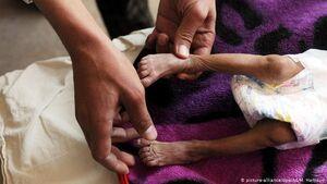 7 کشتی غذای فاسد برای یمنیها +عکس