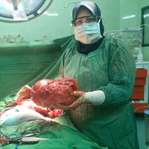 عکس/ خارجکردن غده ۳کیلویی از شکم بیمار جهرمی!