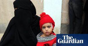 جان باختن ۸۵ هزار کودک یمنی در اثر گرسنگی