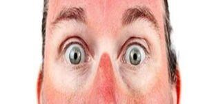 آفتاب سوختگی را چطور درمان کنیم؟
