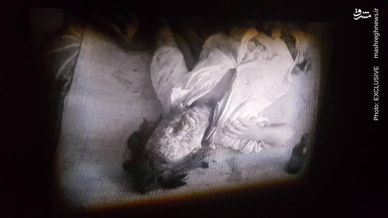 یکی از قربانیان انفجار که با سوختگی شدید دست به گریبان بوده و در نهایت جان میسپارد