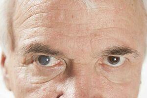 بیماری چشم آب مروارید