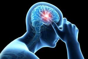 زمان طلایی درمان سکته مغزی حاد