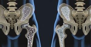 بیماریای که صدای استخوانتان را درمیآورد +روش درمان