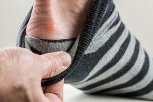 ۱۰ درمان خانگی برای بهبود سریع تاولها