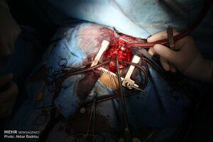 جزئیات عملیات انتقال هوایی دو قلب اهدایی