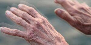 «پارکینسون» چه اختلالاتی در بدن ایجاد می کند؟