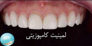 لمینت دندان و مراحل نصب آن روی دندان