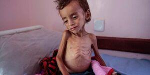 کودک یمنی سرطان