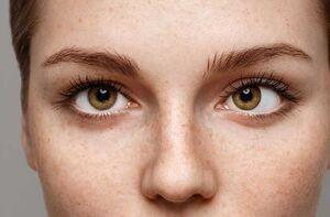 تمرینهایی برای کمک به رفع انحراف چشم