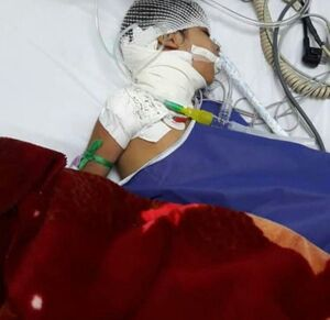 جزئیاتی از حمله سگهای ولگرد به دختربچه 7 ساله +عکس