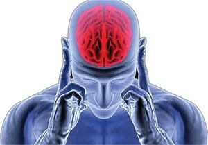 کاهش سن سکته مغزی در ایران