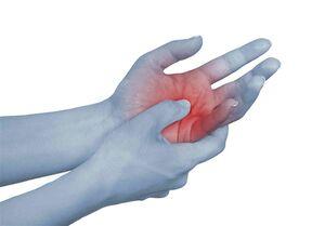 """توصیههای تغذیهای برای بیماران مبتلا به """"روماتیسم مفصلی"""""""