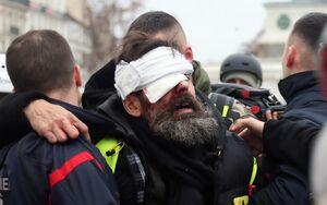 تیر «فلش بال» به چشم تظاهرکنندگان فرانسوی خورد اما رسانهها و نهادهای بینالمللی کور شدند/ از نابینایی تا قطع عضو؛ نتیجه تاکتیکهای مرگبار پلیس پاریس! +عکس