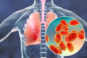 بیماری مرگباری که با سرفه، تب و لرز آغاز میشود