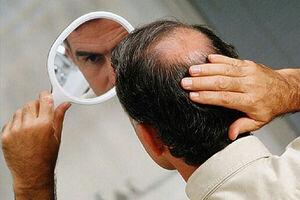 نقش ویتامین ها در ریزش مو