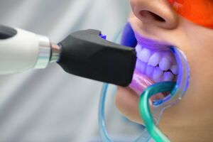 نکاتی که باید قبل از سفید کردن دندانها بدانید