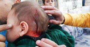 عکس/ زخمی شدن نوزاد فلسطینی توسط صهیونیستها