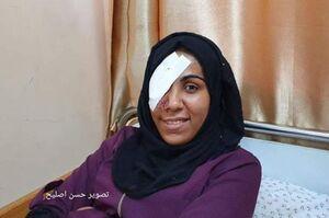عکس/ سرباز صهیونیست چشم دختر فلسطینی را درآورد